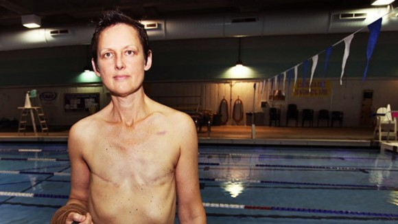 Breast Cancer Survivor Fights To Swim Topless in Public Pool