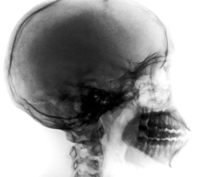 xray-skull