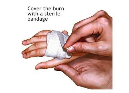 http://www.themarysue.com/wp-content/uploads/2014/05/Cover_burn_with_sterile_bandage.jpg