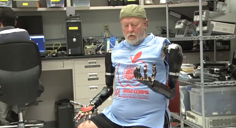 Watch This Double Amputee Make History As He Controls Two Robotic Limbs With His Mind